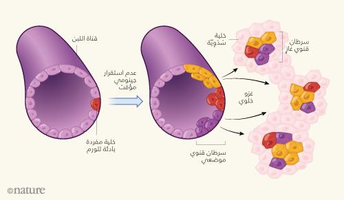 سرطان استكشاف الخلايا الغاز ي ة في سرطان الثدي News Views